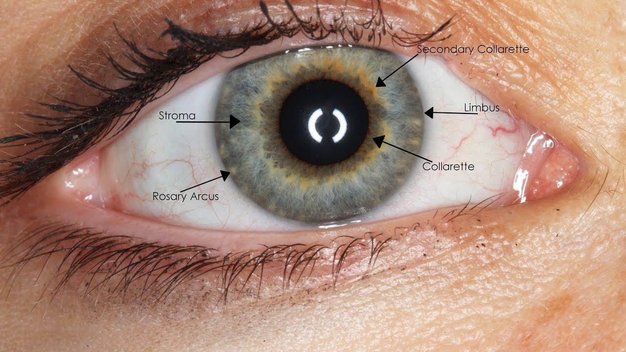 العين الصناعية