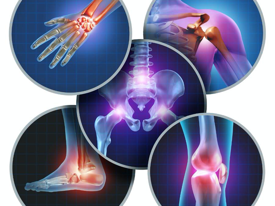 ألم العظام أعراضه أسبابه وطرق الوقاية و العلاج Safar Medical
