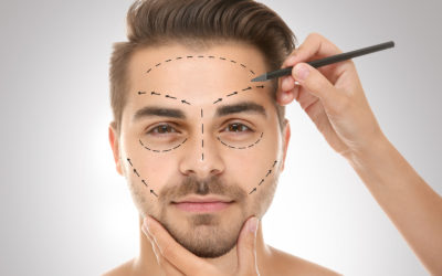 Traditional facelift surgery and thread facelift