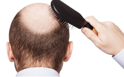 Hair loss and treatment methods