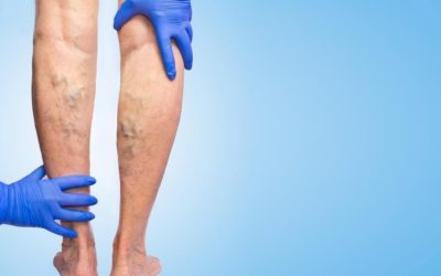 Varicose veins symptoms and causes