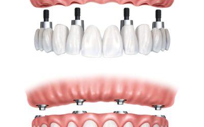 Все, что вам нужно знать о зубных имплантатах (All-On-4)