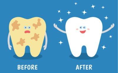 Советы по образу жизни с хорошими зубами