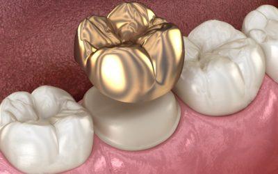 Золотые зубные коронки