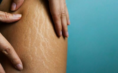 What is cellulite and how can you treat it?