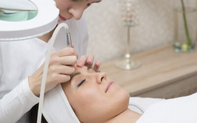 All You Need to Know About Laser Skin Peeling